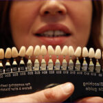 Teeth Coloring Chart Cool Photography Calls to Clamp Down On Illegal Teeth Whitening