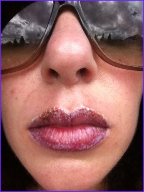 How to rid of lip scabs