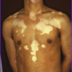 Skin Coloring Disorder Beautiful Photos Stem Cell Therapy Treatment For Vitiligo Or Pigmentary