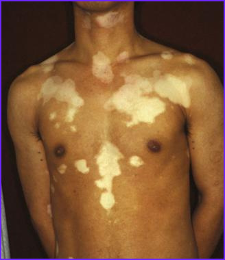 stem cell therapytreatment for vitiligo or pigmentary disorders
