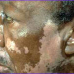 Skin Coloring Disorder Cool Gallery Top 21 Natural Home Reme S For Vitiligo Treatment