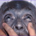Skin Coloring Disorder New Image Poisoning Clues On the Skin 10 Cases